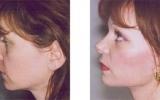 facelift-surgery16