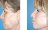 facelift-surgery17