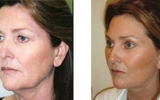 facelift-surgery18