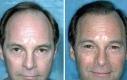 hair-transplantation-1