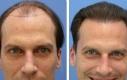 hair-transplantation-8