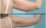 laser-liposuction-arm-behind