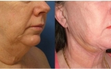 laser-liposuction-chin-neck