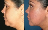 laser-liposuction-chin