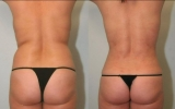 laser-liposuction-tummy-waist3
