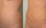 laser-liposuction-tummy2