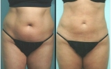 laser-liposuction-tummy3