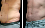 smartlipo-male-tummy
