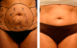 smartlipo-tummy-hips-female