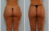 bodyjet-liposuction