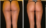 liposuction-outer-thigh