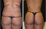 liposuction-waist-behind