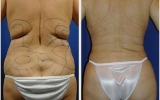liposuction-waist-behind2