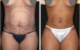 liposuction-waist
