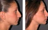 nose-surgery-11