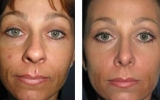 nose-surgery-15