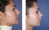 nose-surgery-9