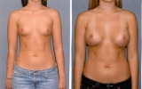 330cc-round-breast-implants