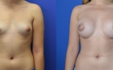 breast-enlargement-round-silicon