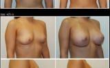 breast-enlargement-silicon-vartgarden