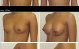 breast-enlargement-silicone-275cc