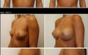 breast-implants-300cc-memory-gel
