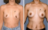 round-implants-submuscular