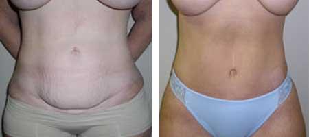 tummy tuck îndepărtează grăsimea puteți pierde în greutate cu viermii