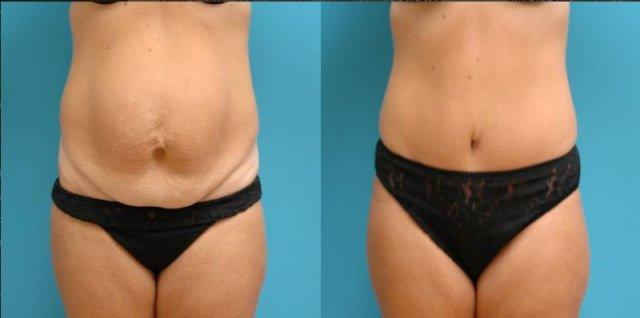 fructe in dieta de slabit mary qvc pierdere în greutate