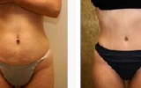 abdominoplasty-4