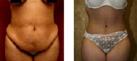 scadere in greutate involuntara slabire 4 kg pe luna