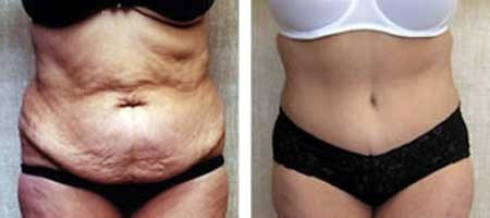 Operatia de abdomninoplastie