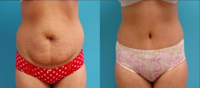 Diferența dintre liposucție și tumie Tuck - 2021 - Sănătate