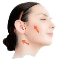 Facelift incision placement