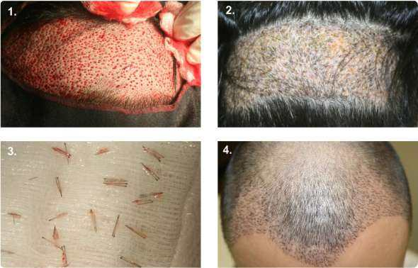 1. The harvested area with the FUE method. 2. The harvested area one-week postoperative 3. The transplantation 4. The recipient area a week post operative