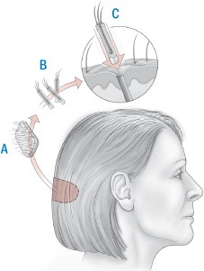 Different methods of hair transplantation.
