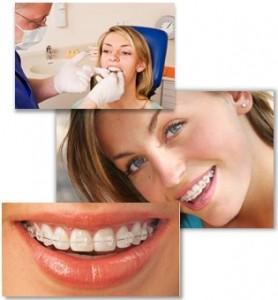 aesthetical-teeth-straightening