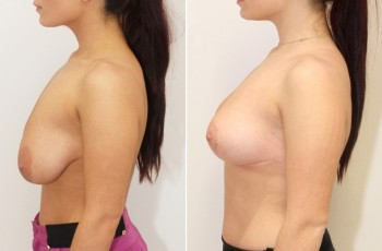 Before and after pictures of breast lift surgery