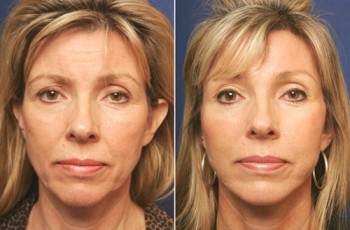 Before and after photos of brow lift patients