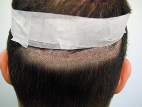 The time following a hair transplant