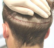 After undergoing a hair transplant,