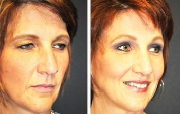 Before and after photos of eyelid surgery reference patients