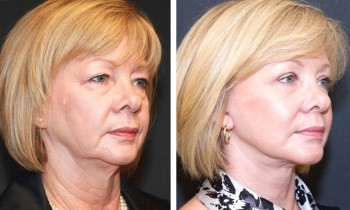 Before and after face lift pictures