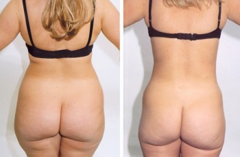 Pictures before and after liposuction