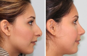 Before and after photos of nose surgery patients