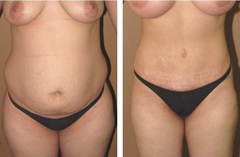 Pictures before and after a tummy tuck