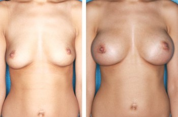 Pictures before & after a breast enlargement