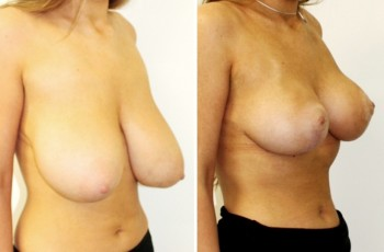 Before and after pictures of breast reductions