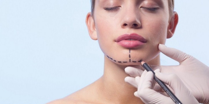 All about chin augmentation