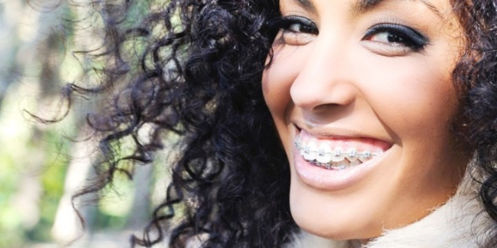 All about teeth straightening<br> with dental braces